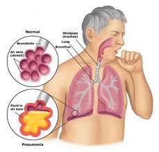 obat paru-paru basah alami